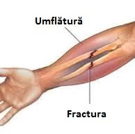 din dureri articulare după o fractură comminuată tratamentul durerilor acute de genunchi